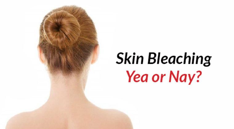 Skin bleaching: a yea or nay?